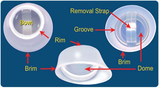 femcap contraceptive