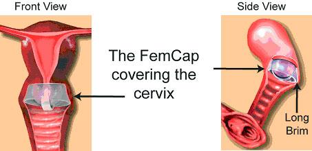 femcap contraceptive, willowclinic.ca